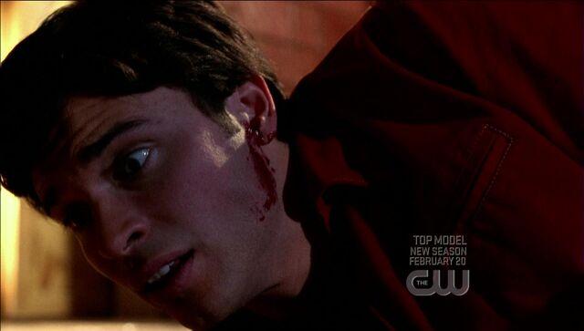 File:'s ear bleeds.jpg