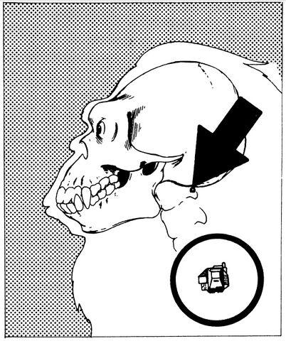 File:Anti-Shock Implant.jpg