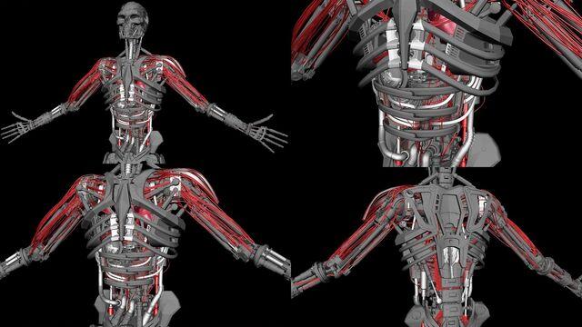 File:Hybrid-Endo- and-Vascular-System.jpg