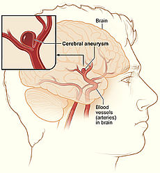 File:Brainaneurysm.jpg
