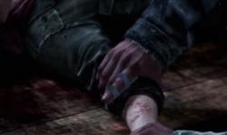 Ellie's bite