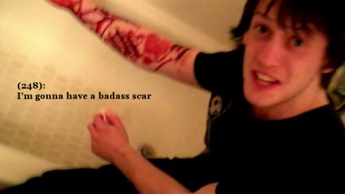 File:Evan scar.png