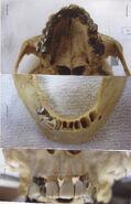 Will Teeth
