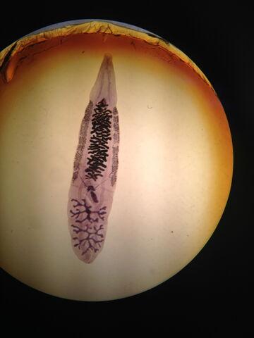 File:Adult Clonorchis sinesis.jpeg