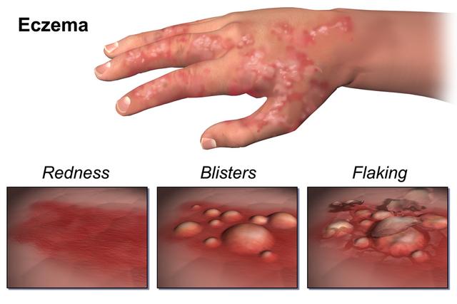 File:Eczema.png