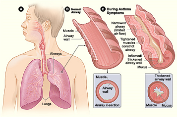 File:Asthma picture.png