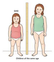 Growth-hormone-deficiency