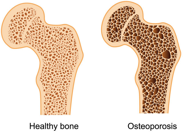 File:Osteoporosis.jpg