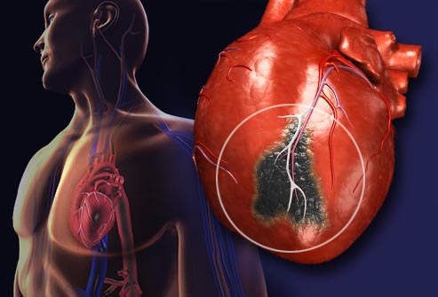 File:Getty rm illustration of heart attack.jpg