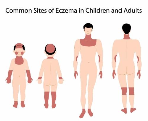 File:Eczema-areas-500x410.jpg