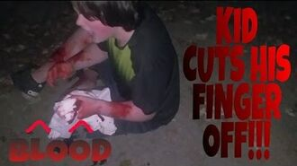 KID CUTS HIS FINGER OFF WITH CHAINSAW!!!