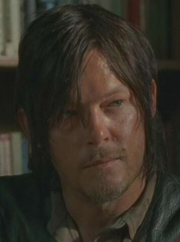 File:Daryl Infected 5.JPG