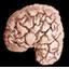 Skenduolio smegenys