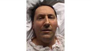 Epilepsia Partialis Continua of Kozhevnikov