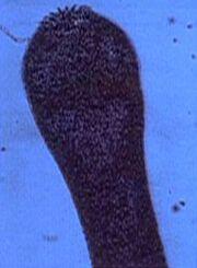 Tapeworm scolex