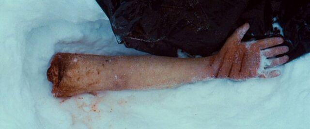 File:Franz Tomczeszyn's arm.jpg